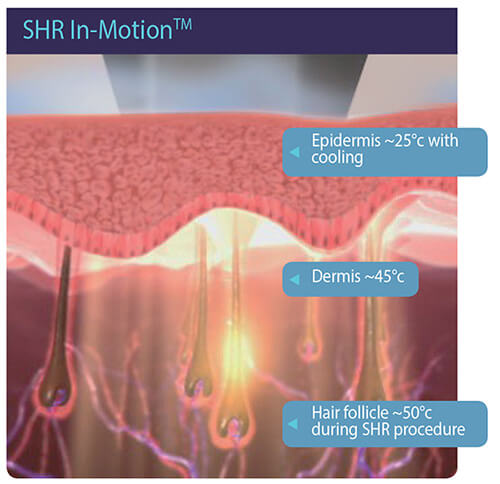 Laserska epilacija - Sve o laserskoj epilaciji 002